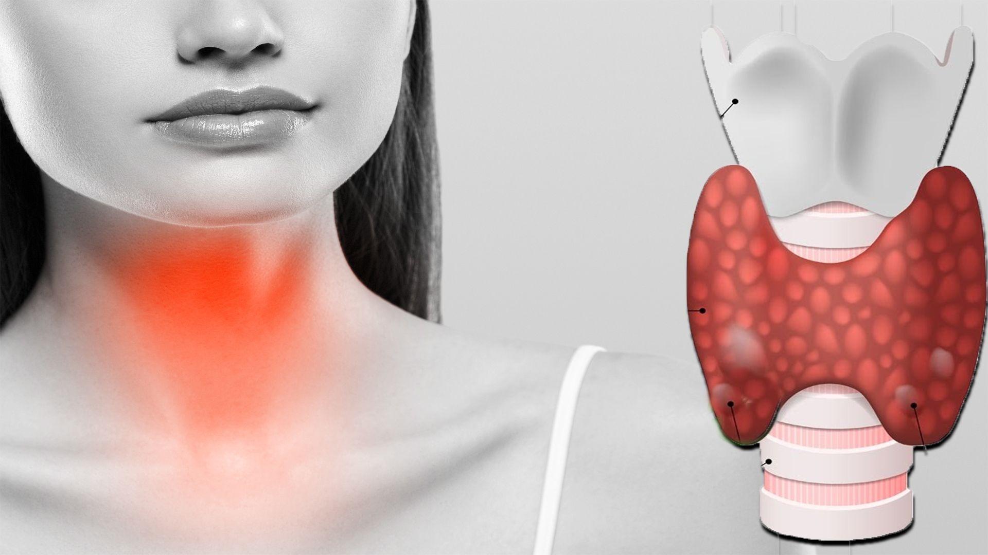 Probleme tiroidiene: 3 tratamente pe care le puteți aplica acasă … 5 obiceiuri care înrăutățesc problemele tiroidiene