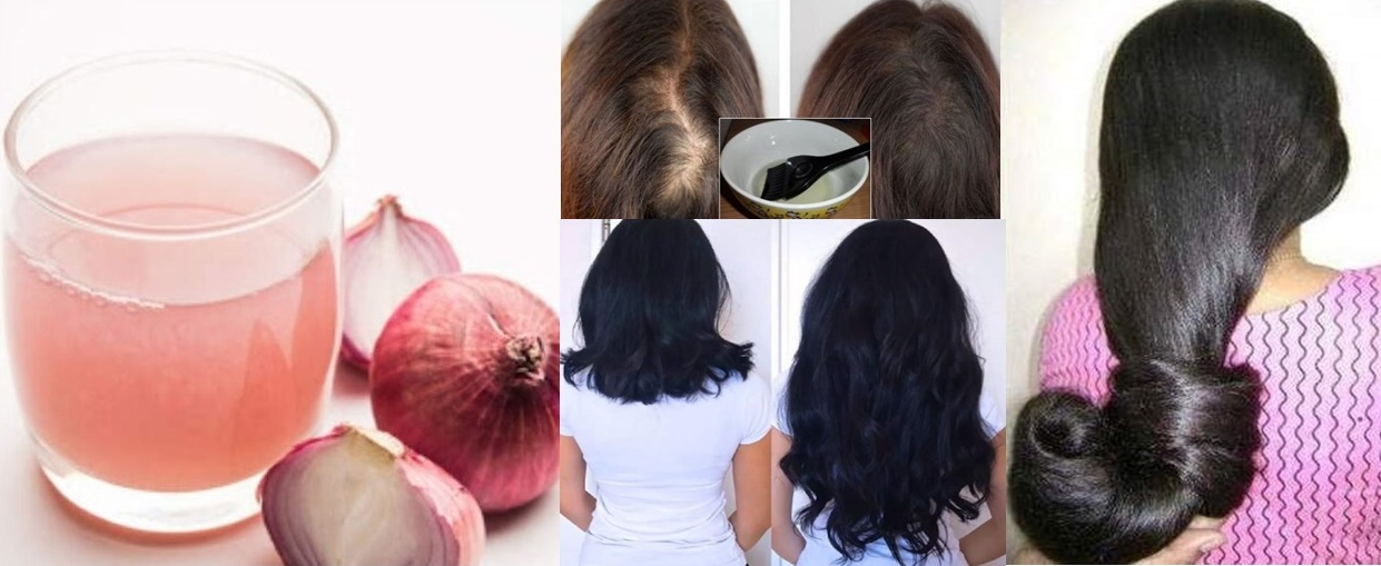 Cum sa-ti faci masti cu suc de ceapă pentru a opri căderea părului, a-l întări și a-l face sa crească frumos